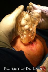 saline breast implant ruptures