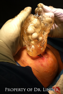 Implant ruptured breast