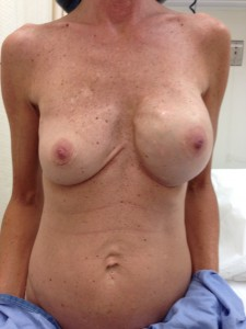 Deflated saline breast