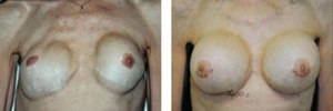 Breast Revision 03