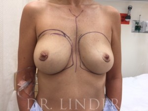 CUI breast implant