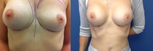 Breast Revision 26