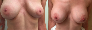Breast Revision 28
