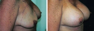 Breast Revision 19