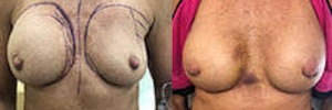 Breast Revision 13